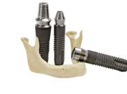 Implantes Dentales a Buen Precio