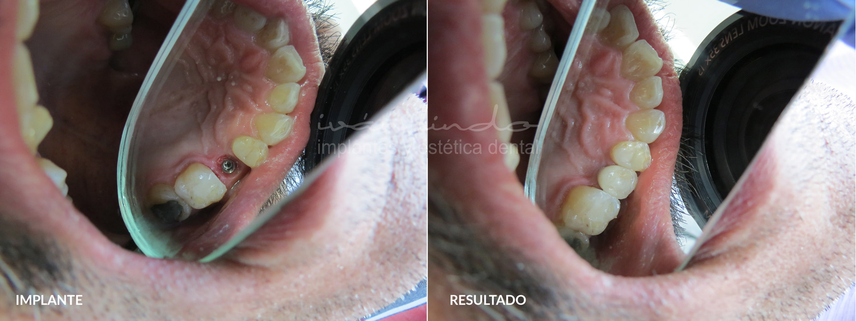 implantes-dentales-caso-34