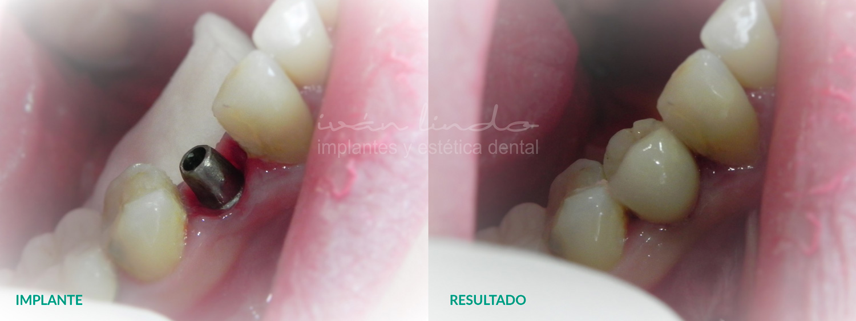 implantes-dentales-caso-63