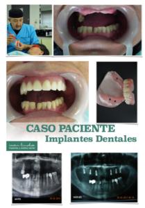 Dental Implant Solution