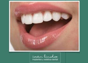 Dental Implant Solutions