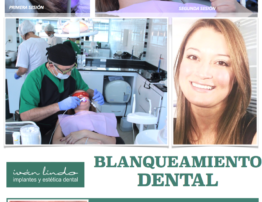 Teeth Whitening by DR. IVÁN LIND