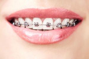 ORTHODONTICS-teeth with braces