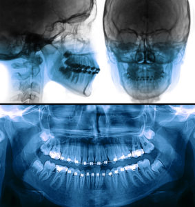 fixed appliance x-ray, orthodontic treatment