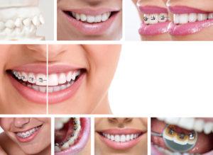 dental braces