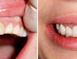 Paciente Antes y Después Diseño de Sonrisa