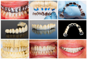 Odontología Alta Estética